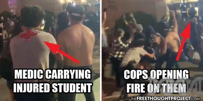 WATCH: Cops Shoot Innocent Student in Head with Rubber Bullet, Open Fi