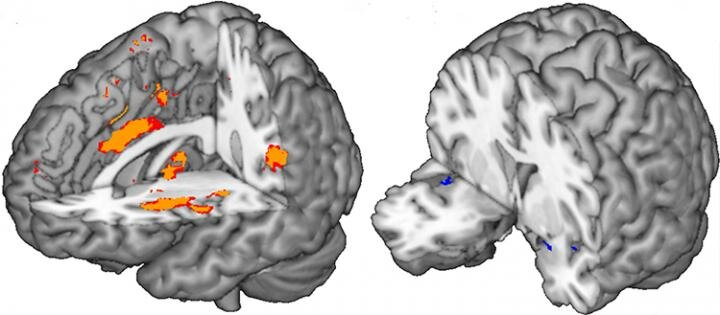 Part of the human brain contributing the most to the prediction of pai