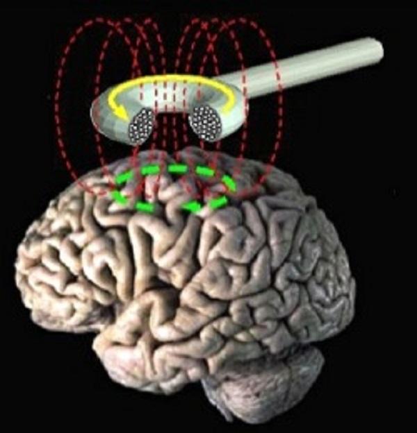 smegenys ir medicina