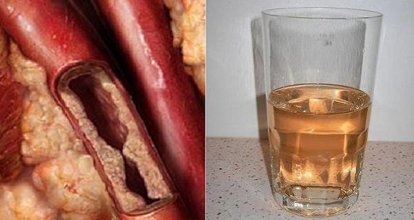 Šis gėrimas išvalys arterijas ir apsaugos nuo širdies ligų