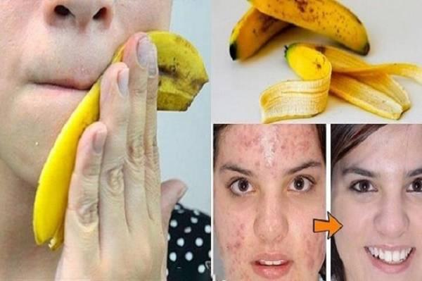 10 būdų, kaip panaudoti banano žievelę
