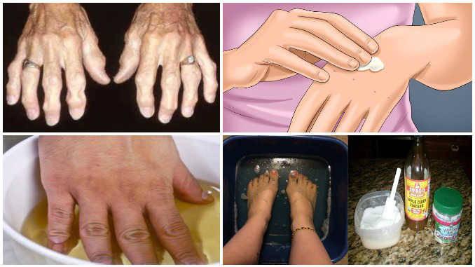 Labiausiai paplitę liaudies gydymo metodai nuo artrito