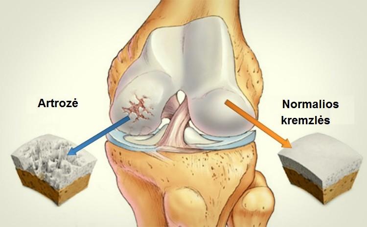 Sąnarių skausmas - simptomai, priežastys ir gydymas - Voltaren