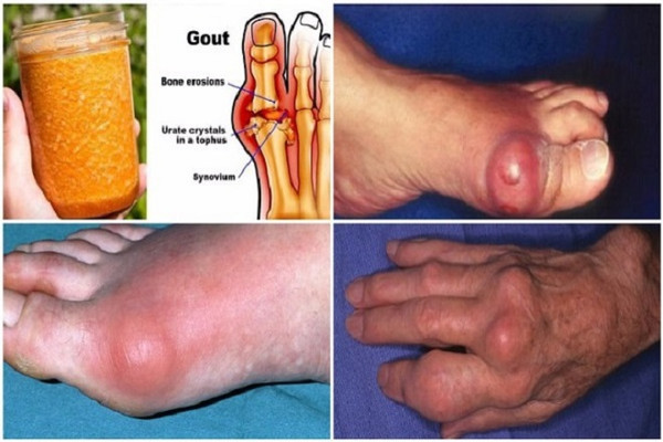 powerful-natural-treatment-say-goodbye-gout-forever