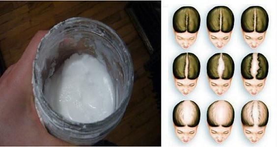Šampūnas iš valgomos sodos - plaukų augimo magija!
