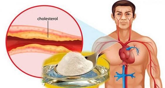 Geriausias būdas kovoti su cholesteroliu ir aukštu kraujo spaudimu!