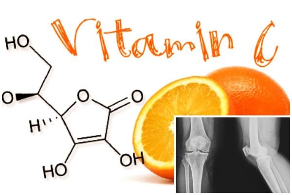 Jei turite vitamino C trūkumą gerkite šį gėrimą!