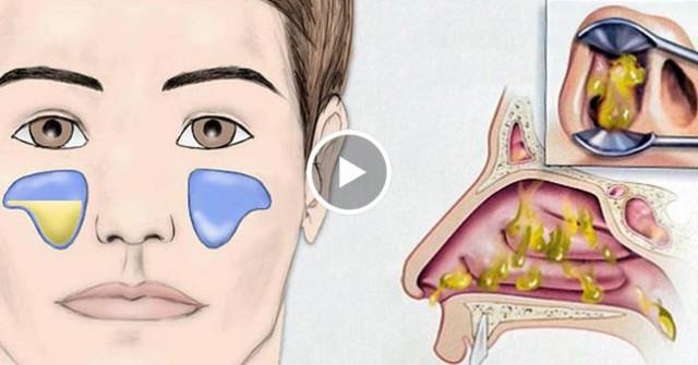 Patikrintas receptas nuo sinusito