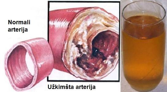 Išvalykite kraujagysles tik viena stikline šio gėrimo!