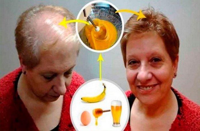 Plaukų augimo receptas: net gydytojai tyli!
