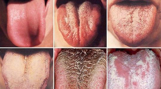 Liežuvio spalva gali nustatyti ligos simptomus, net ir vėžį