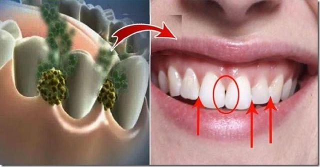 Pašalinkite blogą burnos kvapą per 5 minutes!