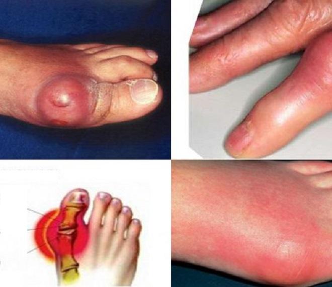 Psoriazini artrita kaune gydo