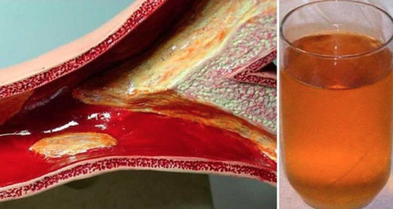 Natūralus vaistas išvalyti užsikimšusias arterijas