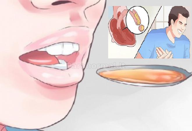 kaip pats atsikratyti hipertenzijos