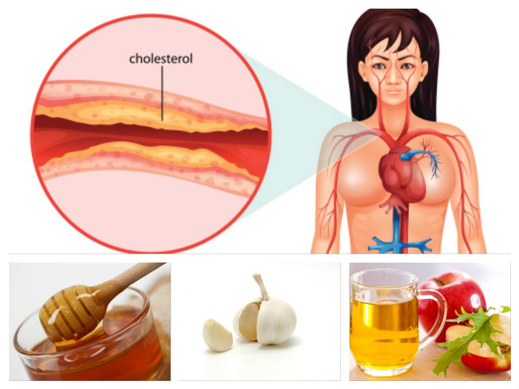 Geriausias vaistas nuo cholesterolio ir aukšto kraujo spaudimo