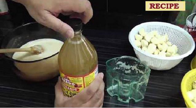 Kaip išvalyti užkimštas arterijas ir sumažinti cholesterolį