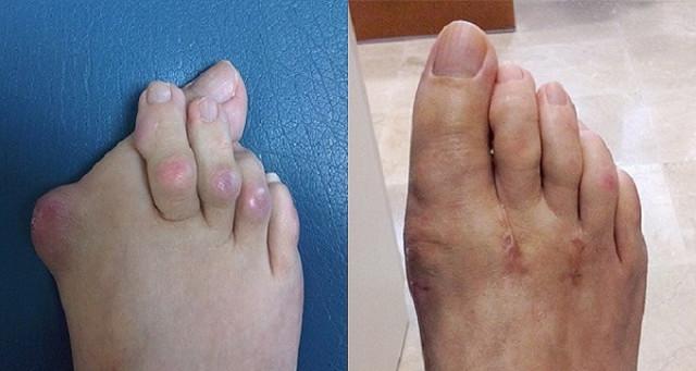 1313 reumatoidinio artrito metu susidaro