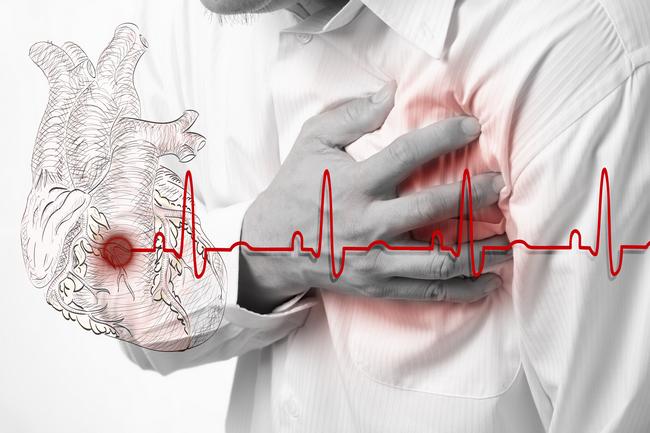 Ligos pagal organų sistemą - Kraujotakos sistemos ligos