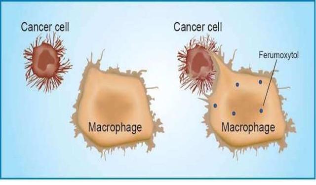 Paprastas vaistas nuo vėžio, parduodamas be recepto, įprastoje vaistinėje!