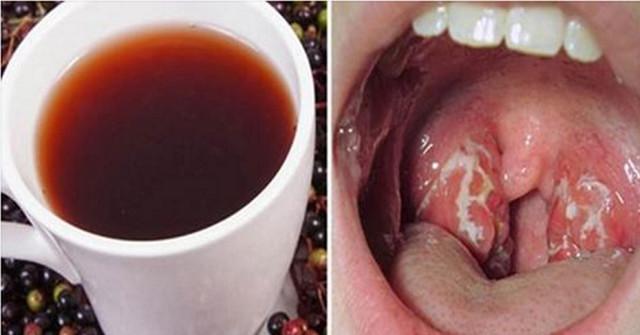 Kaip per 4 valandas atsikratyti infekcijos gerklėje?