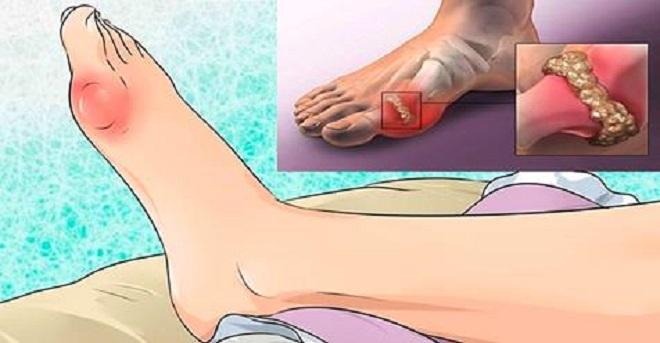 Artritas druskas