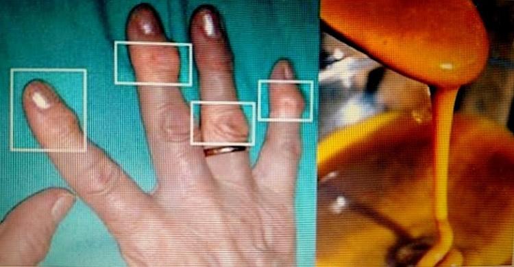 Reumato ir reumatoidinio artrito skirtumai