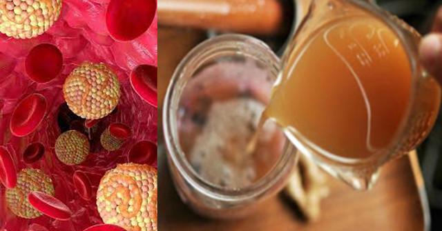 Receptas sumažinti cukraus ir trigliceridų kiekį kraujyje