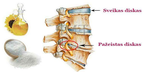 Alternatyvioji medicina prieš osteochondrozę