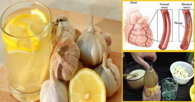 Kaip pasigaminti natūralų česnako-citrinos mišinį širdies užsikimšimui išvalyti