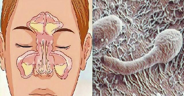 Šis paprastas triukas iš karto pašalins nosies užgulimą! 100% rezultatas!