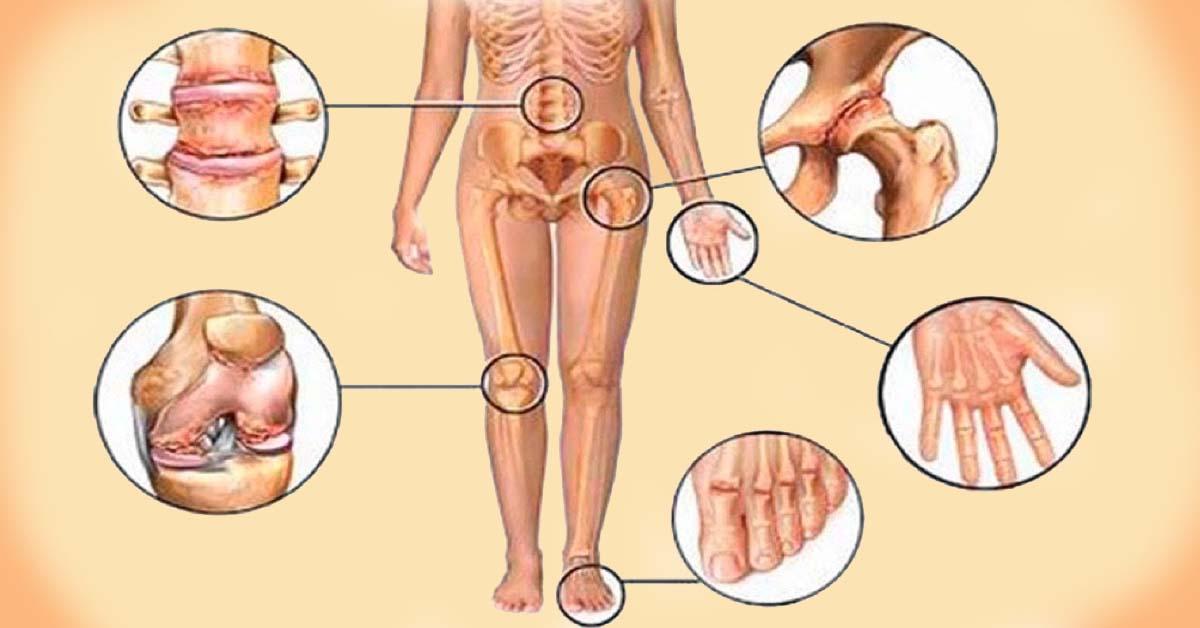 Skirtas sąnariams ir nugaros skausmui gydyti