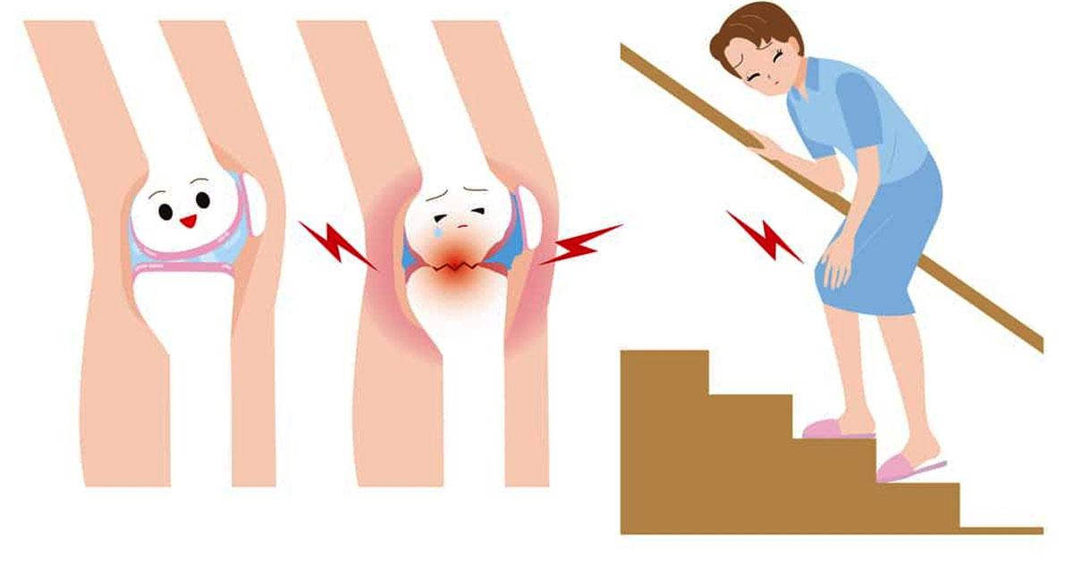 Ciberžolė – prieskonis nuo šimto ligų ir puikus pagalbininkas lieknėjant - Move&Flex