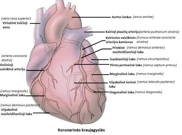 arterijos, gydymas, kraujagyslės, cholesterolis, kraujagyslių valymas