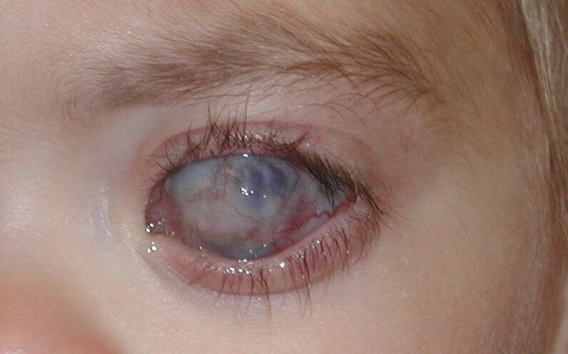 Ką turėtume žinoti apie glaukomą? | profine.lt