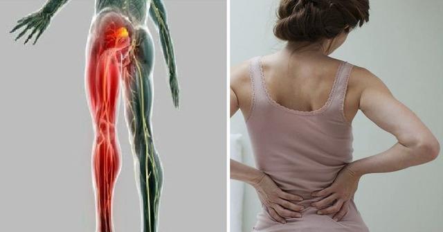 skausmas, išialgija, gydymas, receptas, actas, sveikatos patarimai
