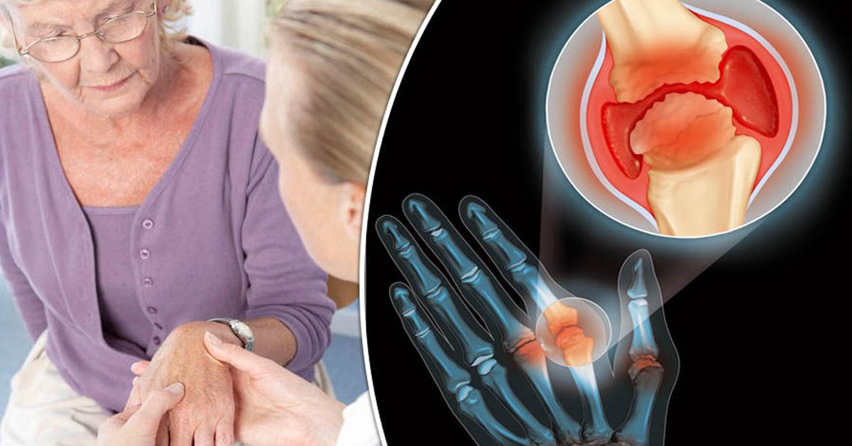 Reumatoidinis artritas: simptomai, priežastys ir gydymas