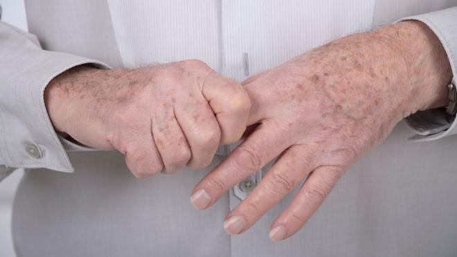 Atskirkite lėtinis kaklo skausmas