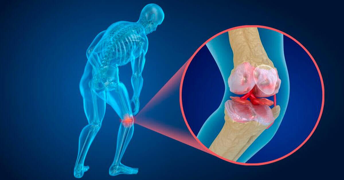 Artritas | Artrito simptomai, požymiai, gydymas