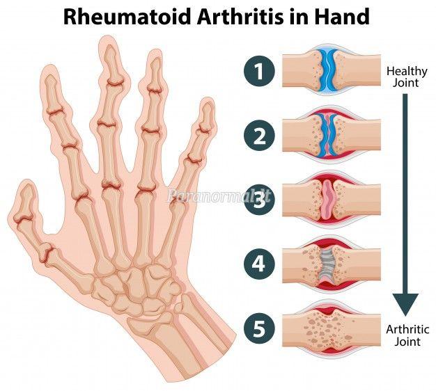 Reumatoidinis artritas: simptomai ir gydymas - Ligų Ir Būsenų, -