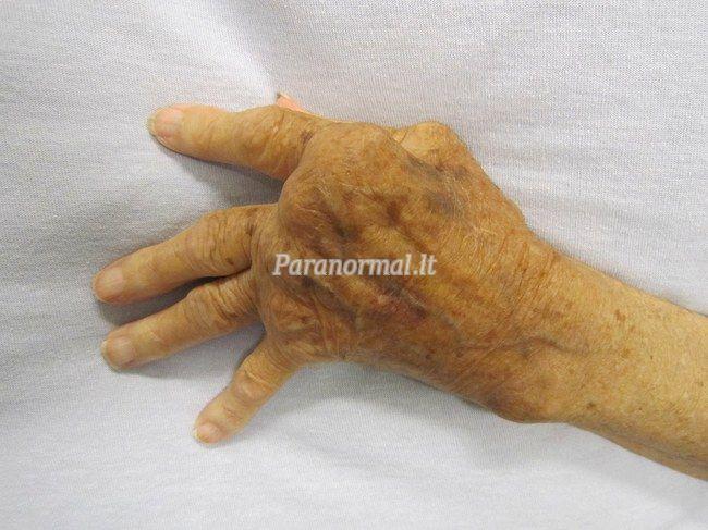 Reumatoidinis artritas. Simptomai, priežastys, eiga ir gydymas - wall4ever.com