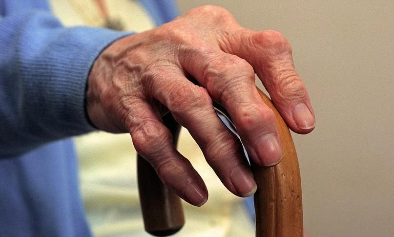 Reumatoidinis artritas nuotraukos