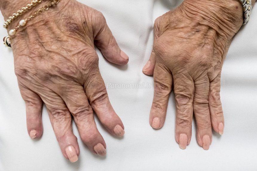 Reumatoidinis artritas kraujo rodikliai forumas Move&Flex