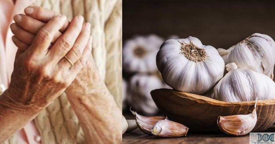 Reumatoidinio artrito gydymas rytų medicina